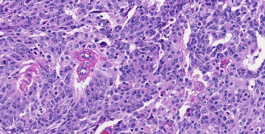 Week 670: Case 1 | Johns Hopkins Surgical Pathology Unknown